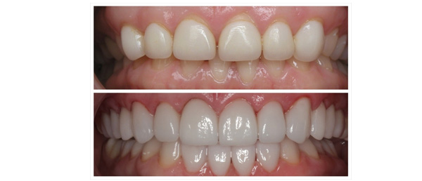Services vivid smile dental individuals who clench and grind their teeth are poor candidate for porcelain veneers as these activities can cause veneers to crack or chip solutioingenieria Gallery
